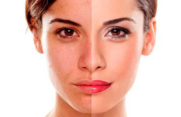 Remove dark spots from skin